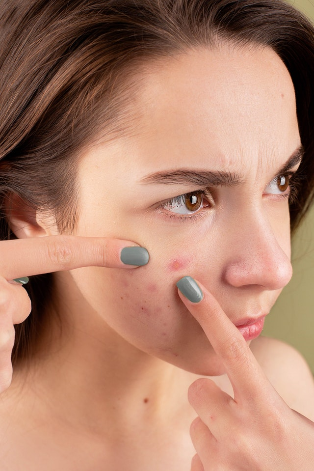 Here are 5 ways to reduce skin inflammation