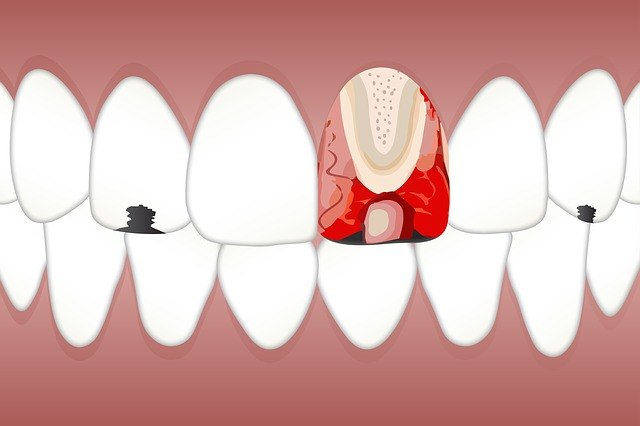 All you need to know about enamel erosion and its treatment